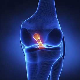 ACL Tear Treatment in Pittsburgh, PA