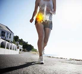 Hip Impingement Treatment in Elfers, FL
