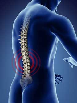 Scoliosis Treatment in Owings, MD